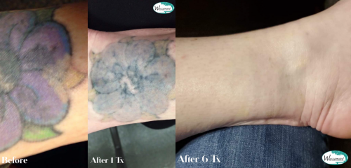 Before after Flower ankle